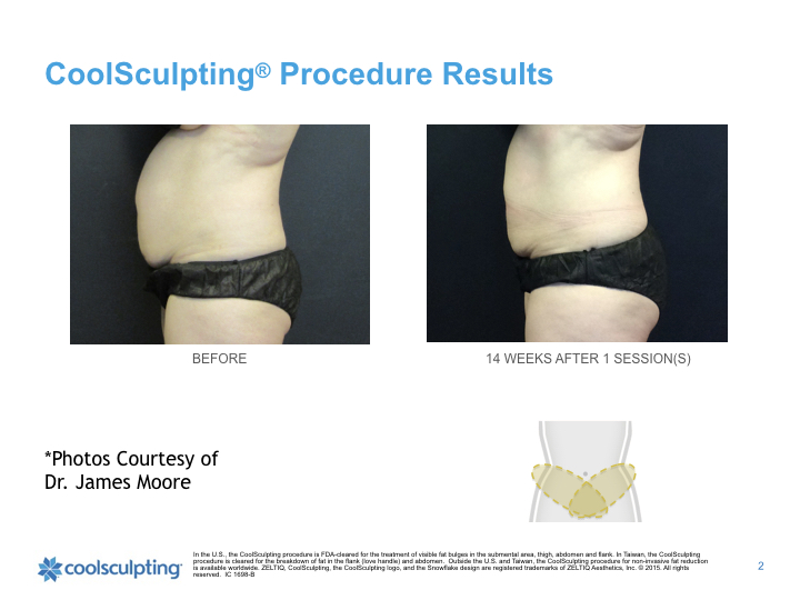 waist-coolsculpting.002.jpeg