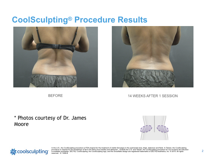 back-Coolsculpting.001.jpeg