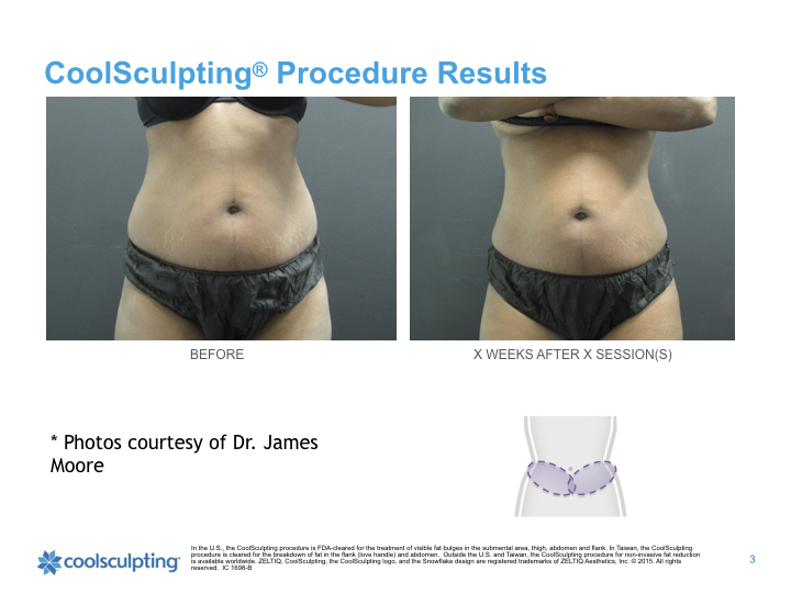 back-Coolsculpting.002.jpeg