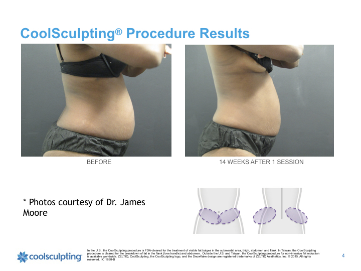 back-Coolsculpting.003.jpeg