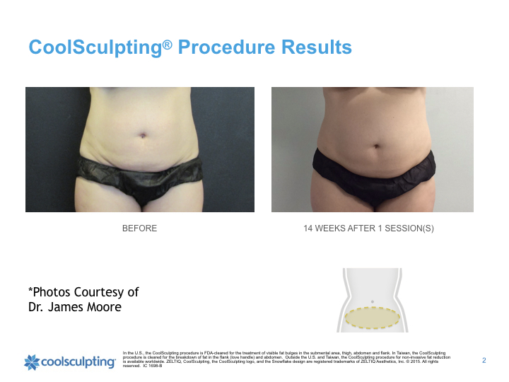 torso-Coolsculpting.002.jpeg