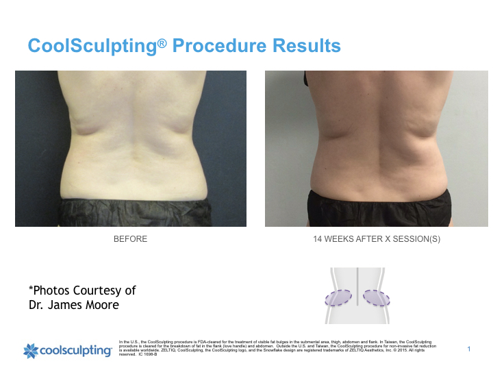 torso-Coolsculpting.001.jpeg