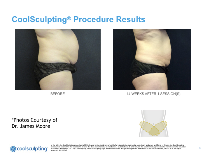 torso-Coolsculpting.003.jpeg