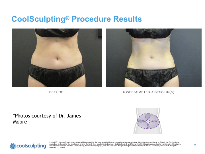 woman-waist-coolsculpting.001.jpeg