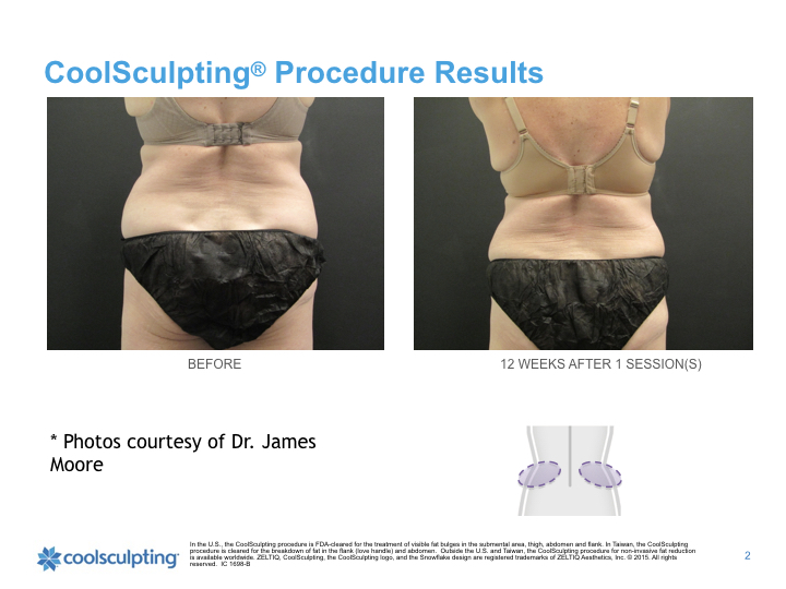 back-woman-flanks-coolsculpting.001.jpeg