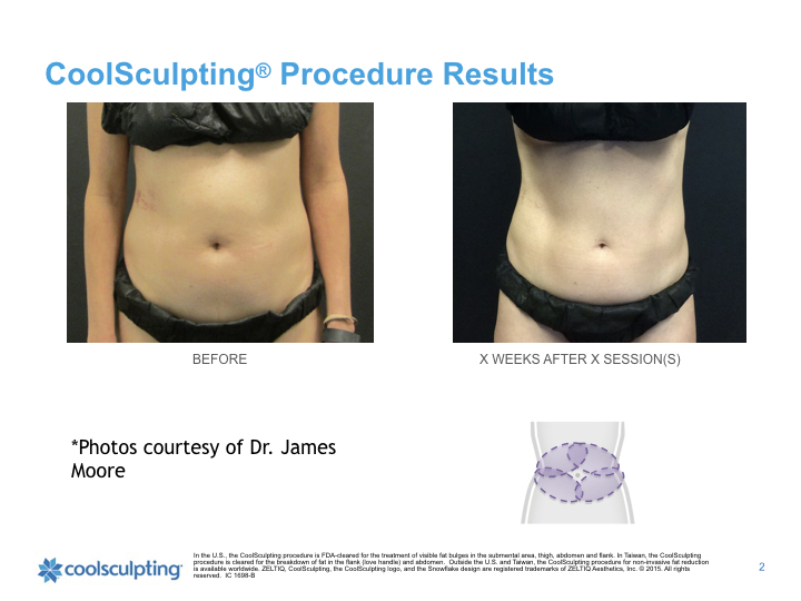 Front-coolsculpting.001.jpeg