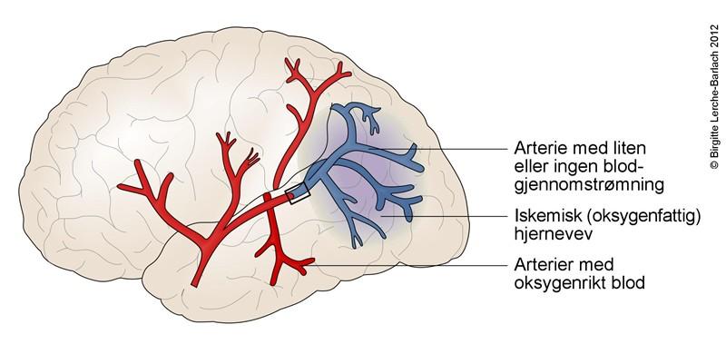 9939-21-hjerneinfarkt-jpg.jpg