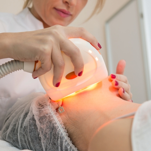 LASER SKIN TREATMENTS -