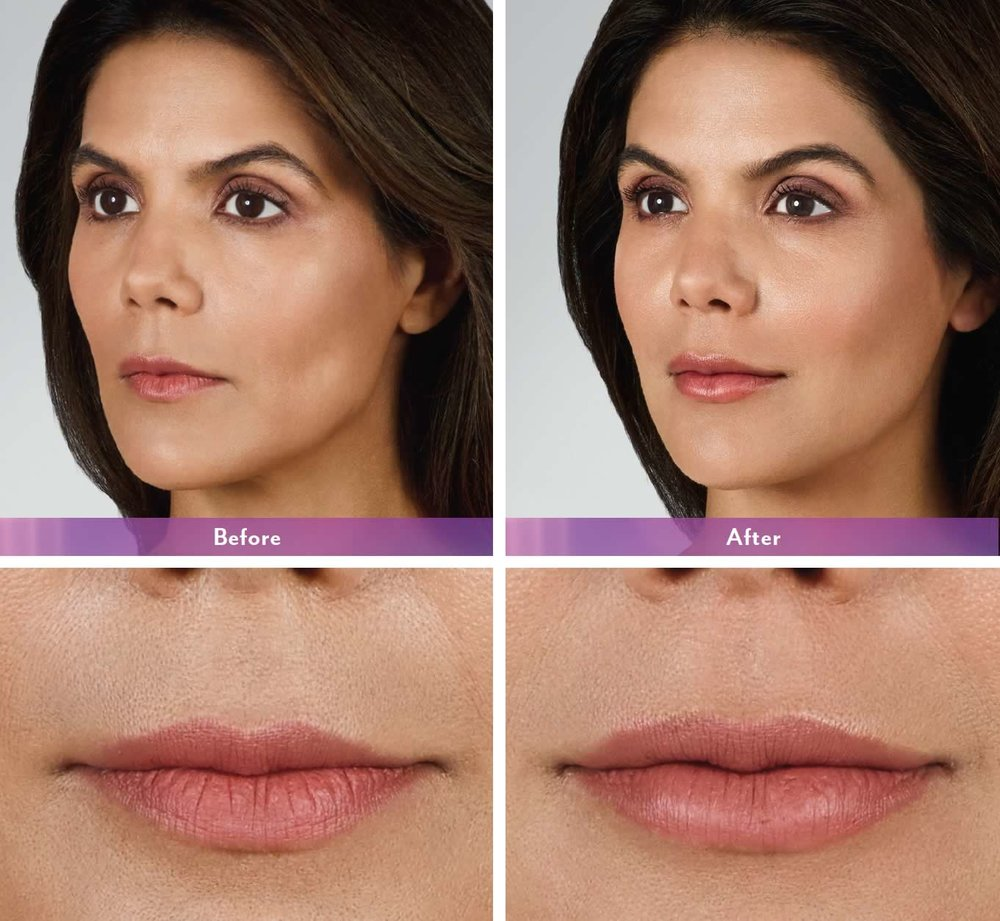 juvederm-volbella-before-after4-1.jpg