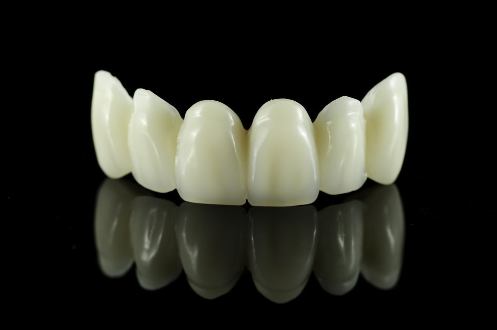 Here is an example of a Dental bridge.