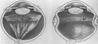Diagram of detached retina (left) and reattached after buckling (right)