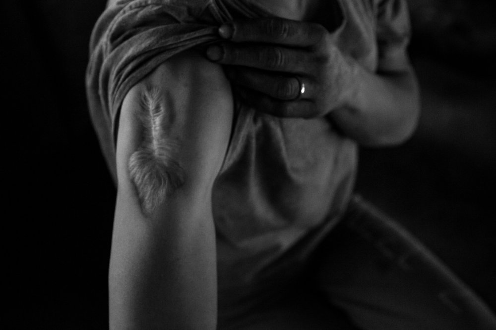 37-year-old Angie Ulrich pulls back her sleeve to show the scar from the abscess that was removed from her arm due to heroin use, Thursday, May 26, 2016. Ulrich as been on and off heroin, and in and out of the Jungle, over the last 15 years.