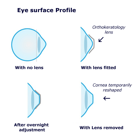 orthokeratology_lens.png
