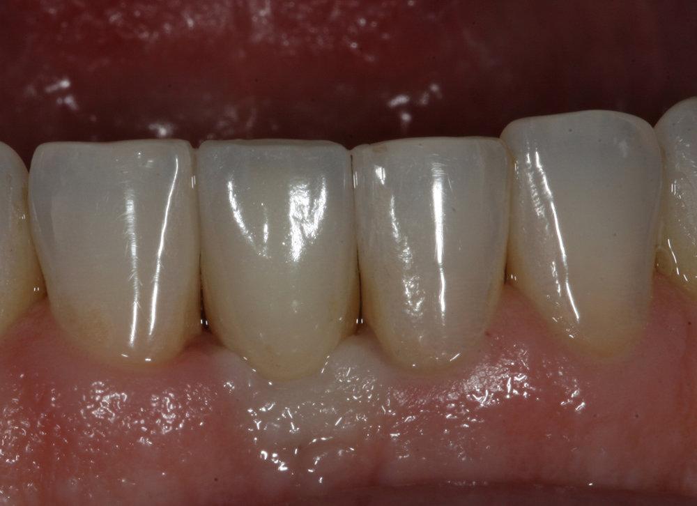 fdal-gallery-implant-1.jpg