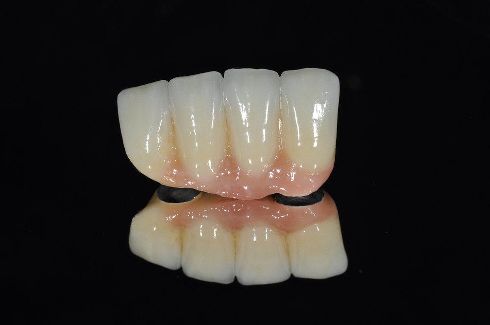 fdal-gallery-implant-3.JPG