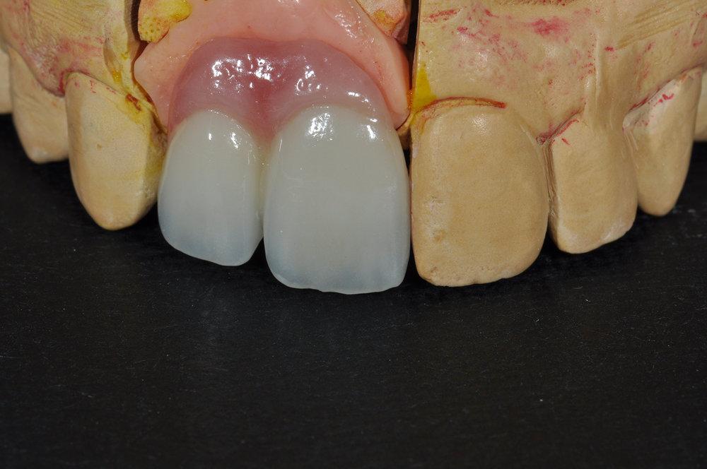 fdal-gallery-implant-4.JPG