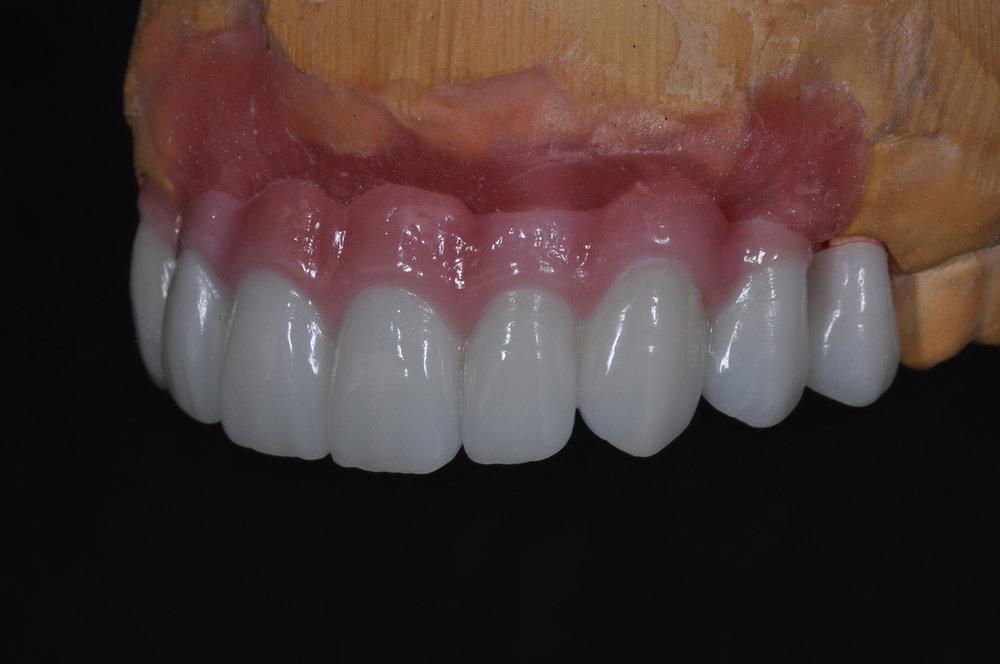 fdal-gallery-implant-6.JPG