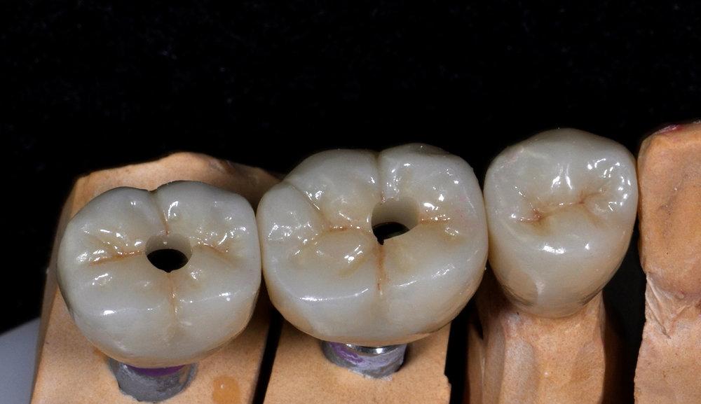fdal-gallery-implant-9.JPG