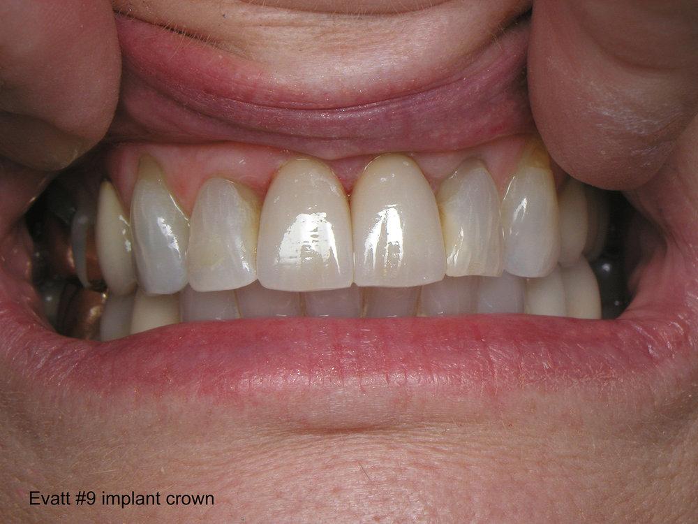 fdal-gallery-implant-13.JPG