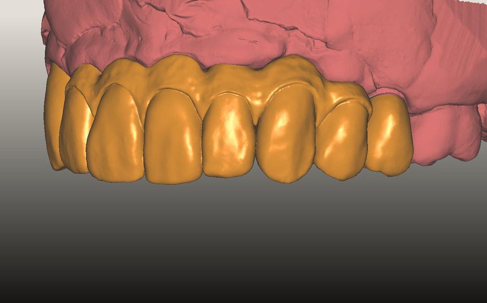 fdal-gallery-implant-14.jpg