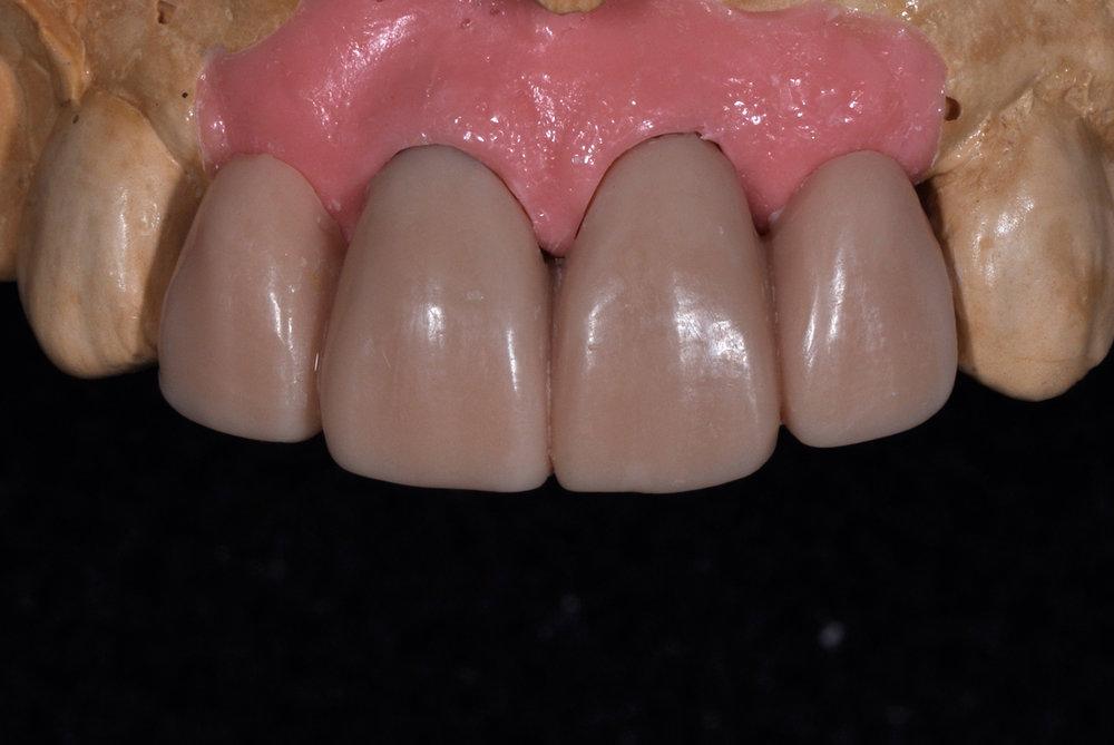 fdal-gallery-implant-16.JPG