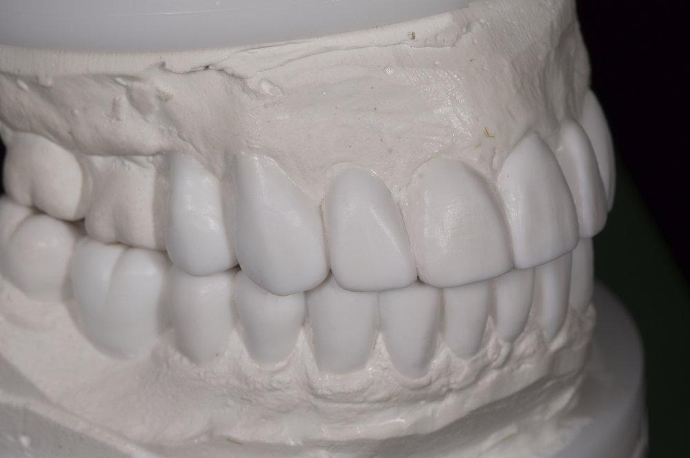 fdal-gallery-smile-23.jpg