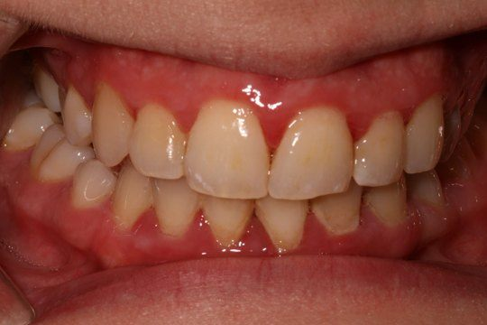 Are Your Gums Receding? Learn More About Causes and ...