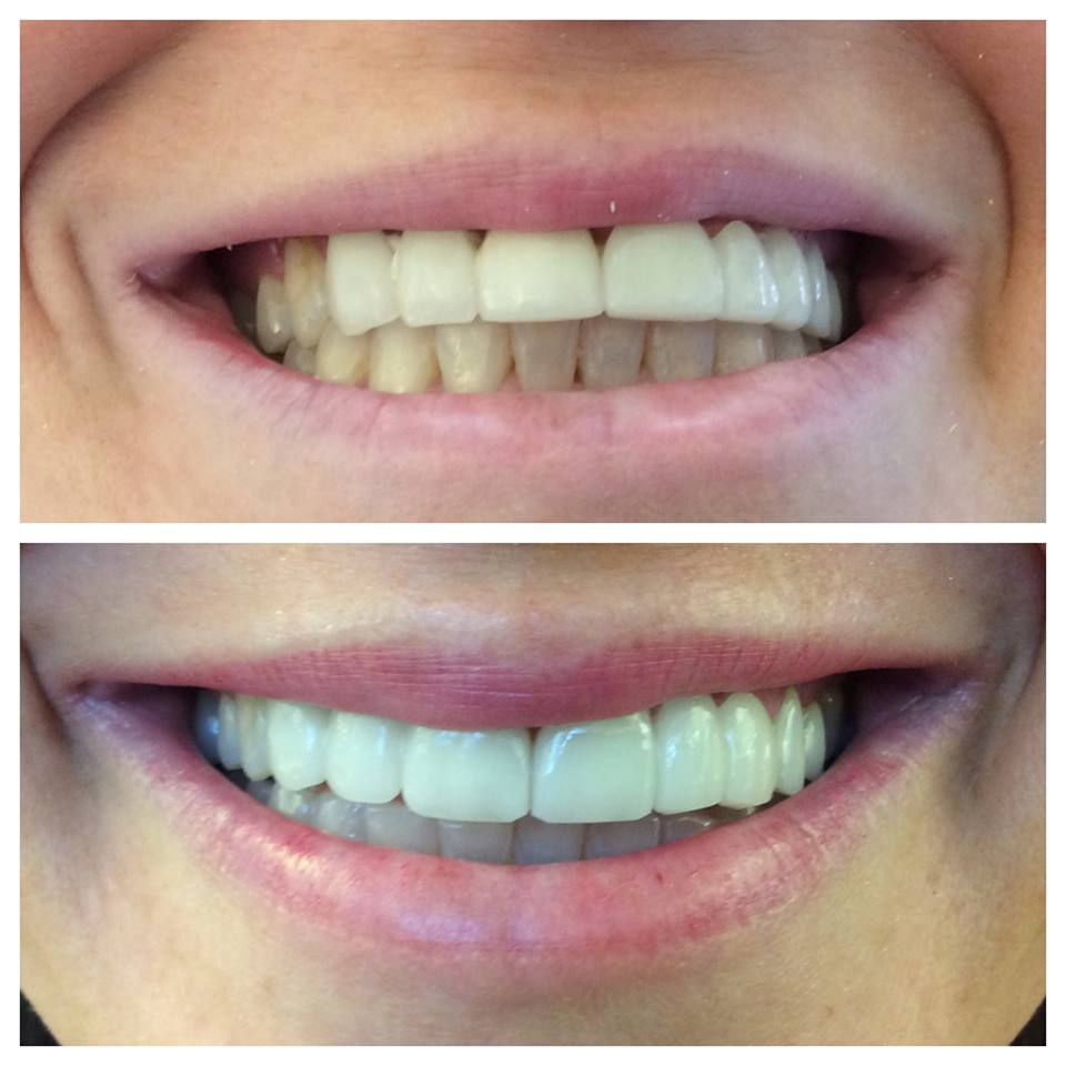 6 anterior crowns and whitening