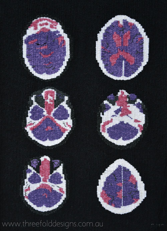 Windows No. 5 - Portrait Of Dementia
