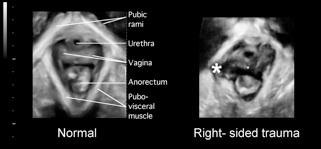 Clinical levator assessment fig 2.jpg