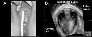 Clinical levator assessment fig 6.jpg