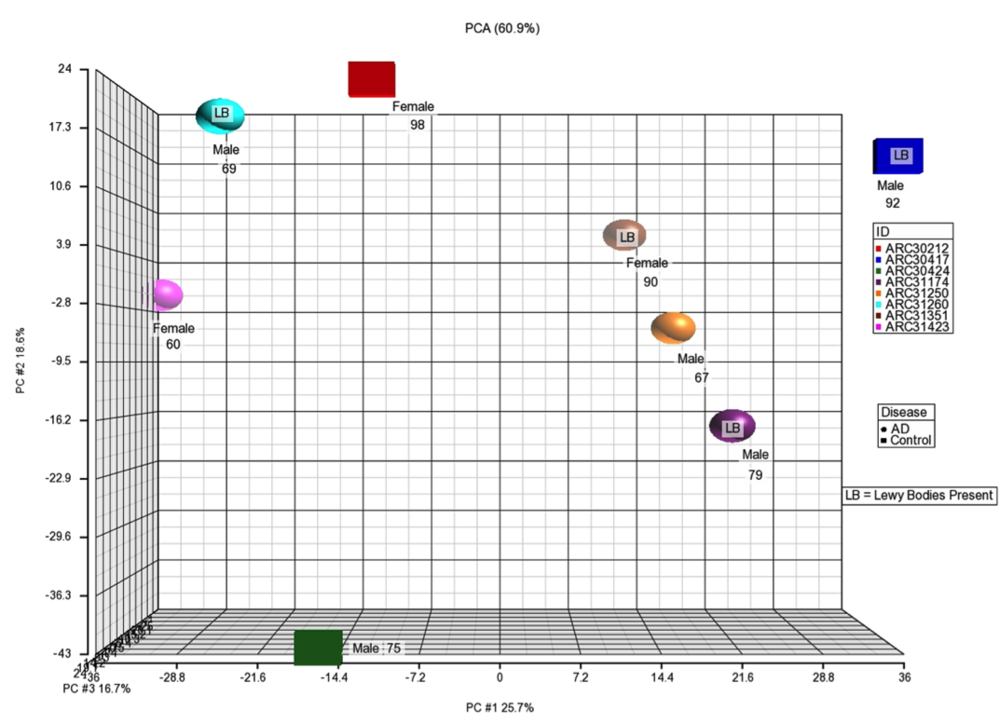 Figure 8 . Principal Component Analysis of CSF Samples with Sex, Age, +/- Lewy Body disease. There is no pattern between cases and controls with respect to demographics.