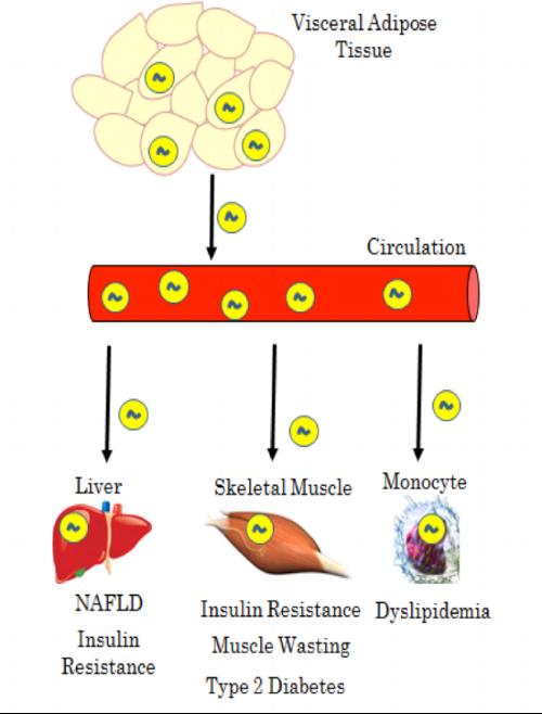 Figure 1 . Manifestation of Visceral Adipose Tissue