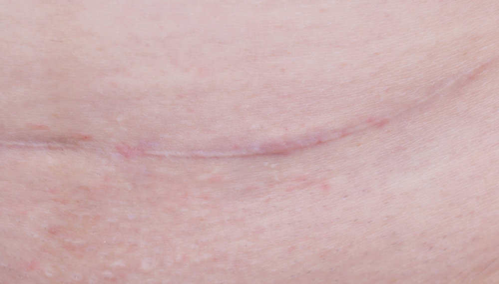 LOOK AND FEEL:  Usually red, raised, and contained to the actual size of the wound, these fade with time. Example: a C-section scar.