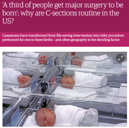 The Guardian U.S. - Jill Arnold was interviewed by Molly Redden in this October 2017 article on cesarean rates and placenta accreta along with Dr. Elliott Main, Dr. Neel Shah and Dr. Flavia Bustreo and Carmen Walker, a placenta accreta survivor in Mississippi.