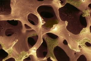 Example of bone osteoporosis