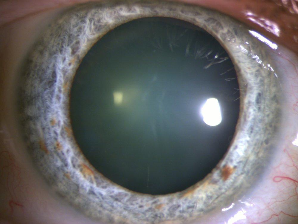 Cataracte corticale antérieure et nucléaire nécessitant une intervention chirurgicale