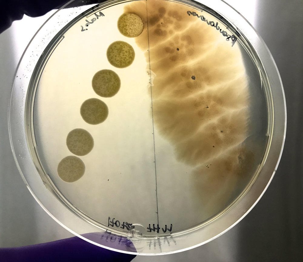 Mycobacterium abscessus  and  Pseudomonas aeruginosa  - Anja Djokic