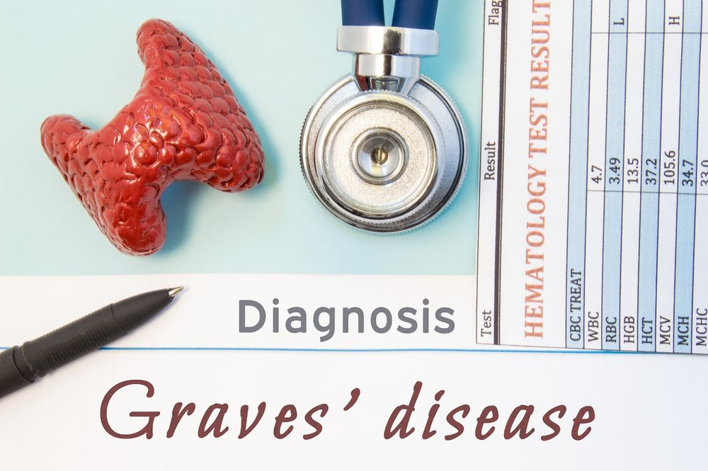 8 Natural Ways To Manage Grave's Disease