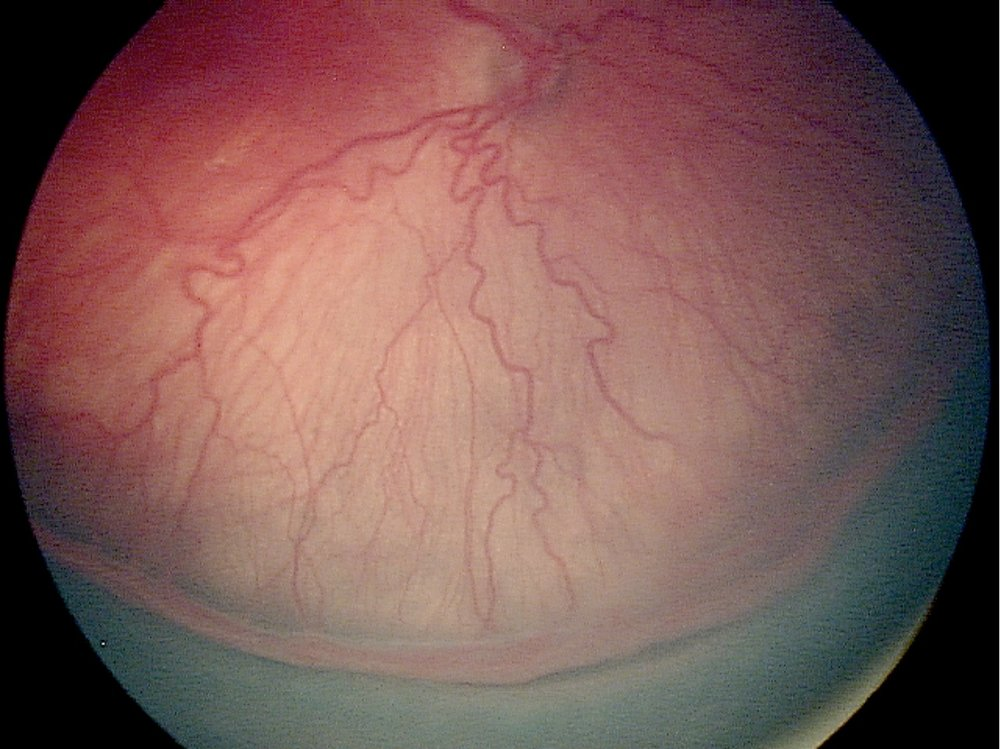 Retinopathy of prematurity - Stage 3 with plus disease