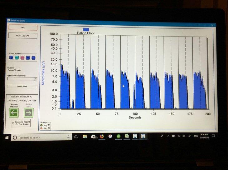 kegel chart.jpg