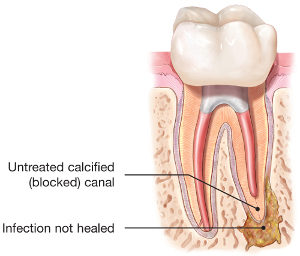 endodontic-retreatment-tooth-abscess-300x256.jpg