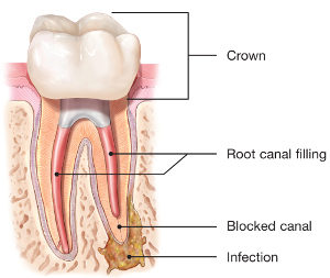 endodontic-retreatment-root-canal-300x253.jpg