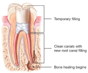 endodontic-retreatment-root-canal-temporary-300x249.jpg