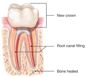endodontic-retreatment-root-canal-crown-300x268.jpg