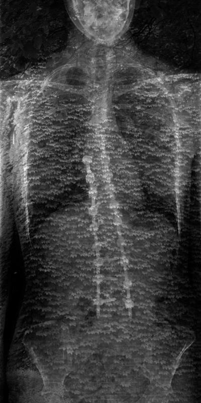 Scoliosis (2012)