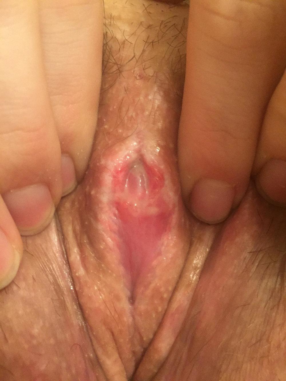 clitoris4.jpg