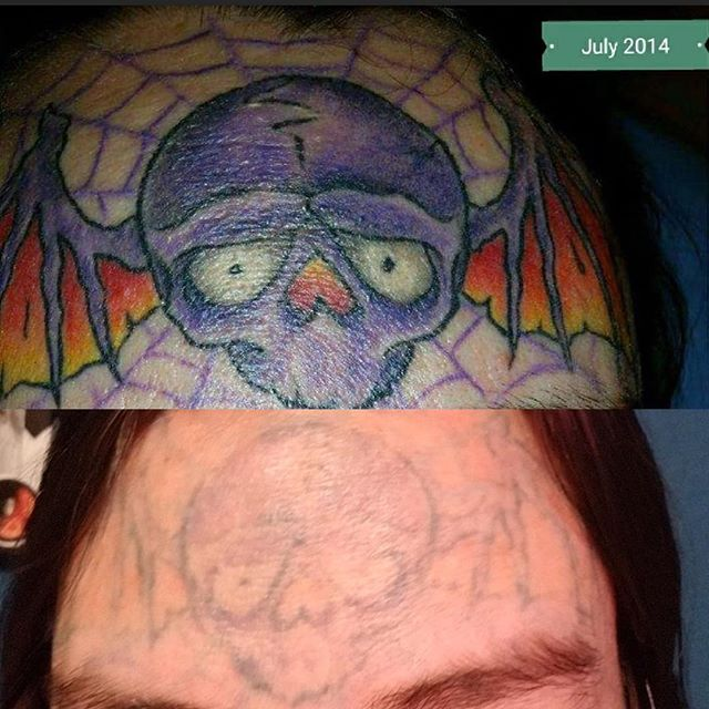 Post five sessions of tattoo removal done with the Picoway.