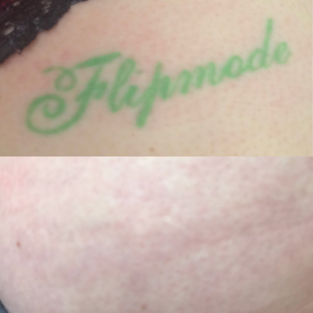 Post seven sessions of tattoo removal done with the Picoway.