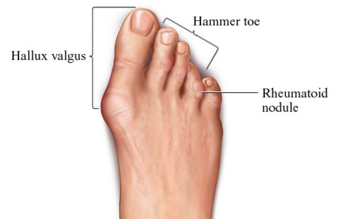hammer-Toes-and-Bunions1.png